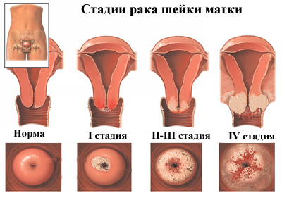a hpv által okozott méhnyálkahártya-rák