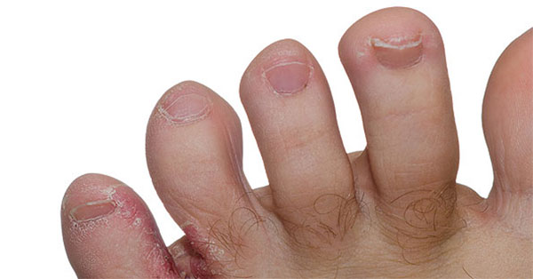 a lábujjak közötti bőrkezelés)