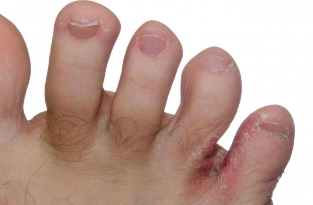 a lábujjak közötti viszketés és a kezelés