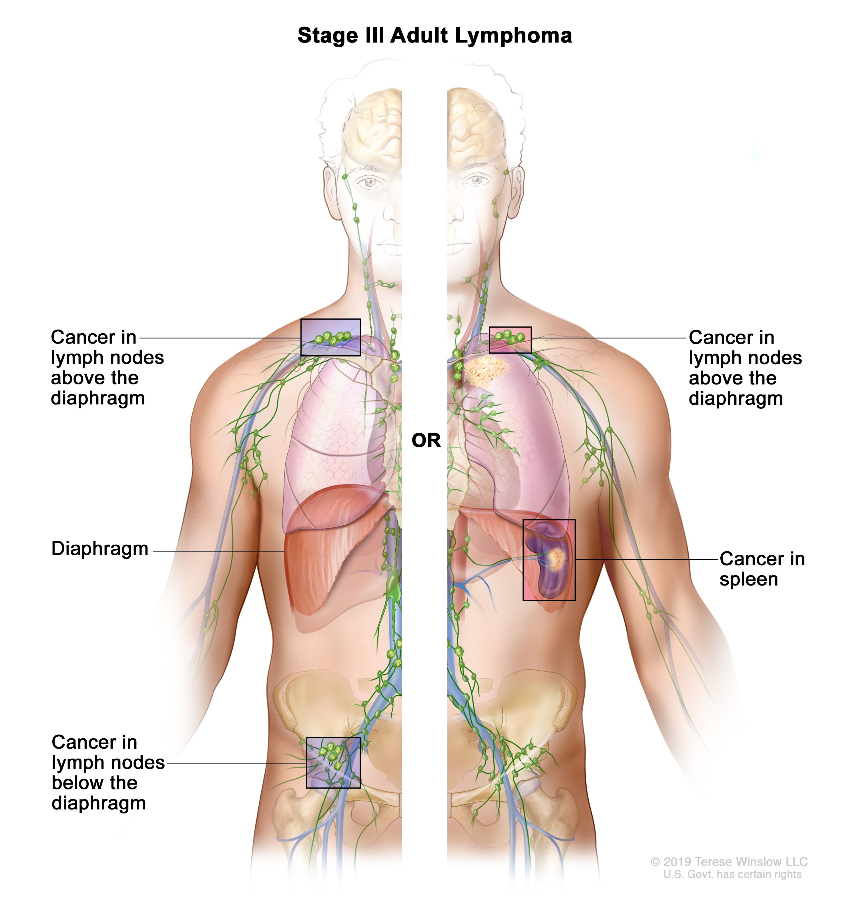 non hodgkin s lymphoma rák)