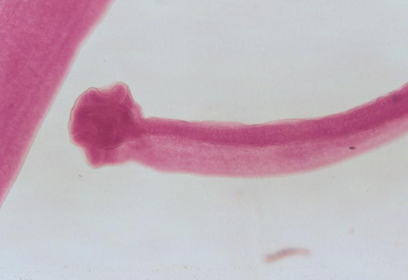 platolehelminthes scolex és proglottids)