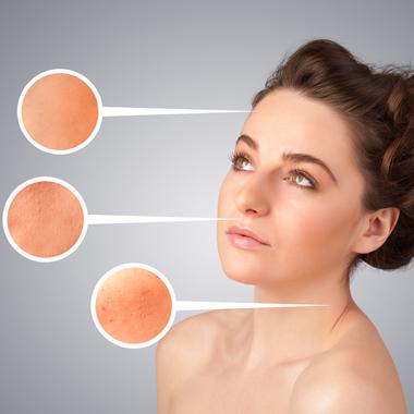 hogyan lehet meggyógyítani a szemölcsöket a cauterization után