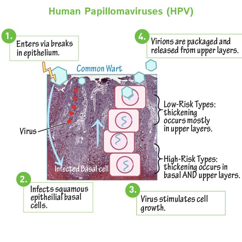 humán papillomavírus hpv uk petefészekrák elleni vakcina mellékhatásai