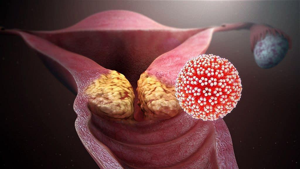 ami emberi papillomavírus fertőzést jelent)