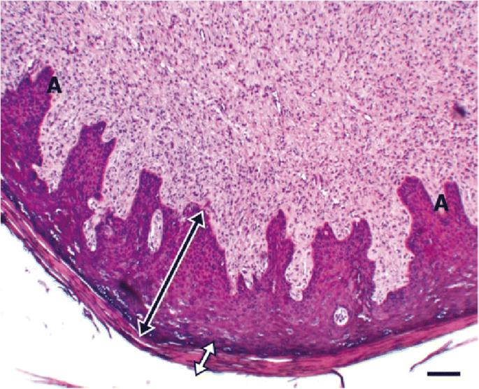 a lábszemölcsök kezelése hogyan lehet kimutatni a papillomavírust emberben