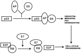légzési papillomatosis patogenezis)