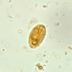 lapos condyloma a férfiak kezelésében paraziták a prosztata kezelésében