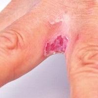 parazita trematodák kezelése pinworms gyermekek tünetei