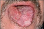 emberi papillomavírus tünetei férfi