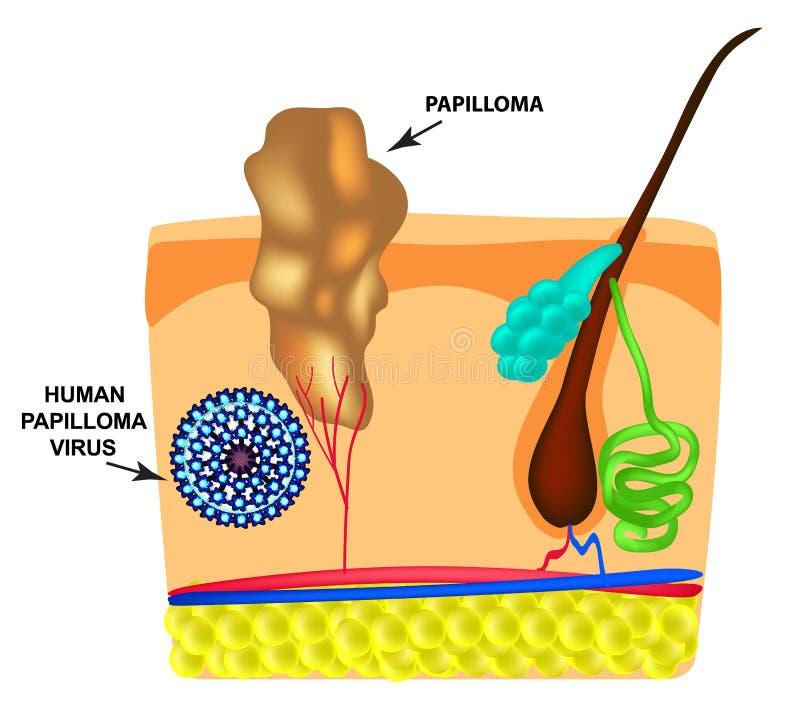 papilloma vírus i