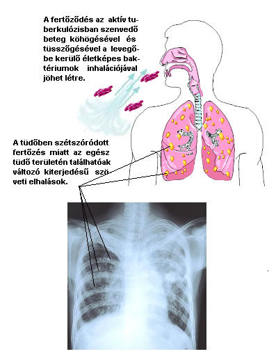 Tüdőfibrózis oka, 5 tünete és kezelése légzőtornával [teljes útmutató]