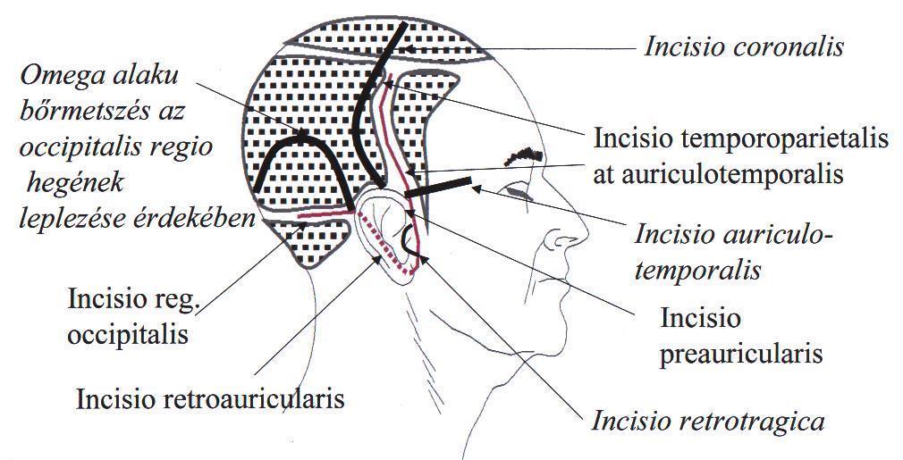 Anomáliák a koponya fejlődésében. Agyi sérv