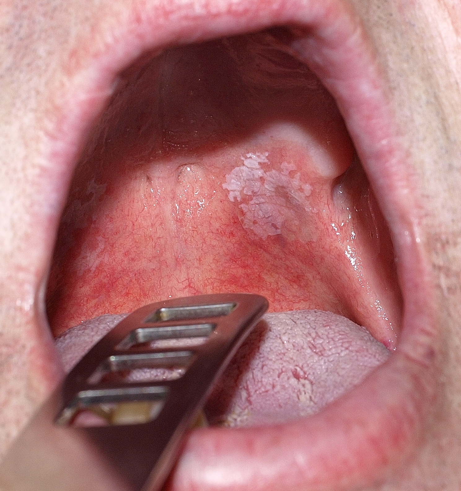 száj szemölcs emberi
