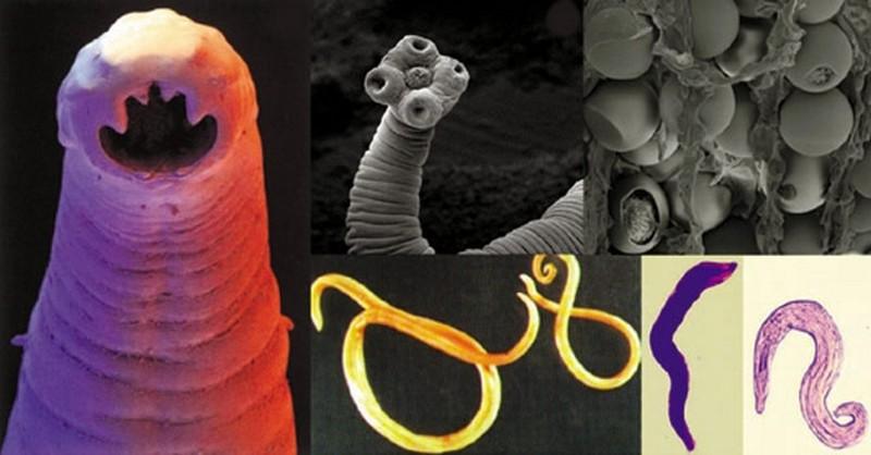 parazita v posteli a genitális szemölcsök első tünetei