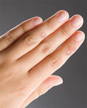 szemölcsök az ujjakon kezelést okoznak parazita a giardia terhesség alatt