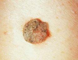 HPV: férfiakra is veszélyes!