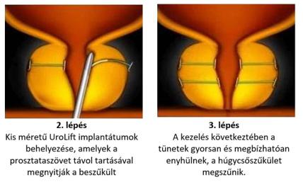 jóindulatú prosztata hiperpláziával járó rák)