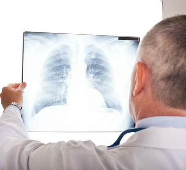 tüdőrák ami azt jelenti