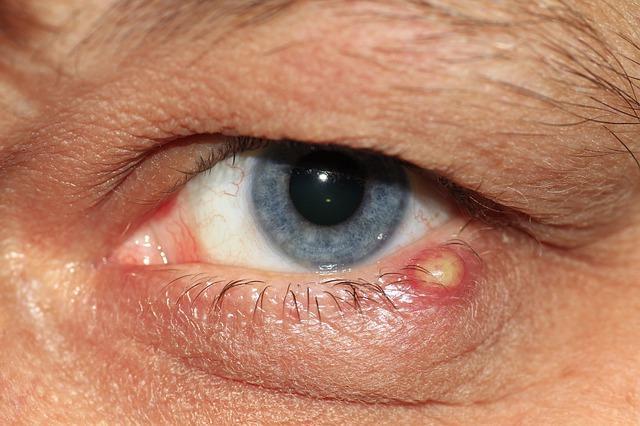 alsó szemhéj kezelés papilloma)