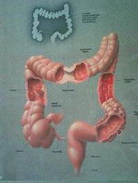 a helminthiasis kezelésének alapelvei