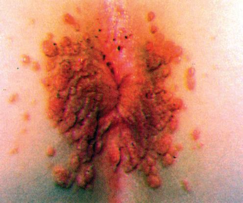 condyloma acuminata labor