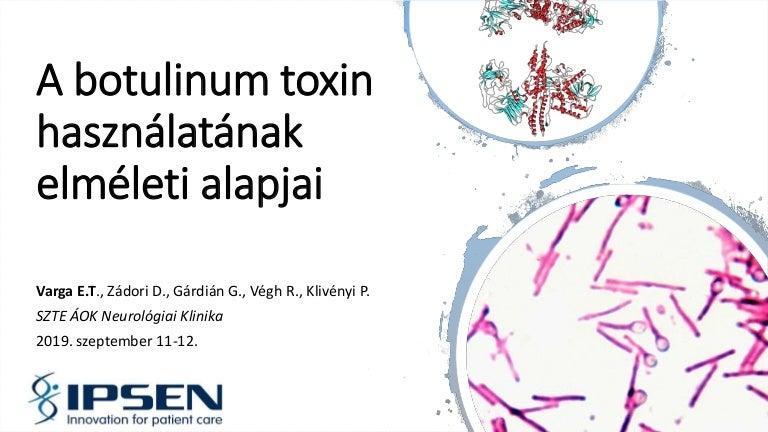 botulinum toxin injekció)