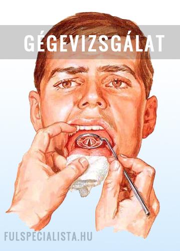 gége papilloma kezelés)