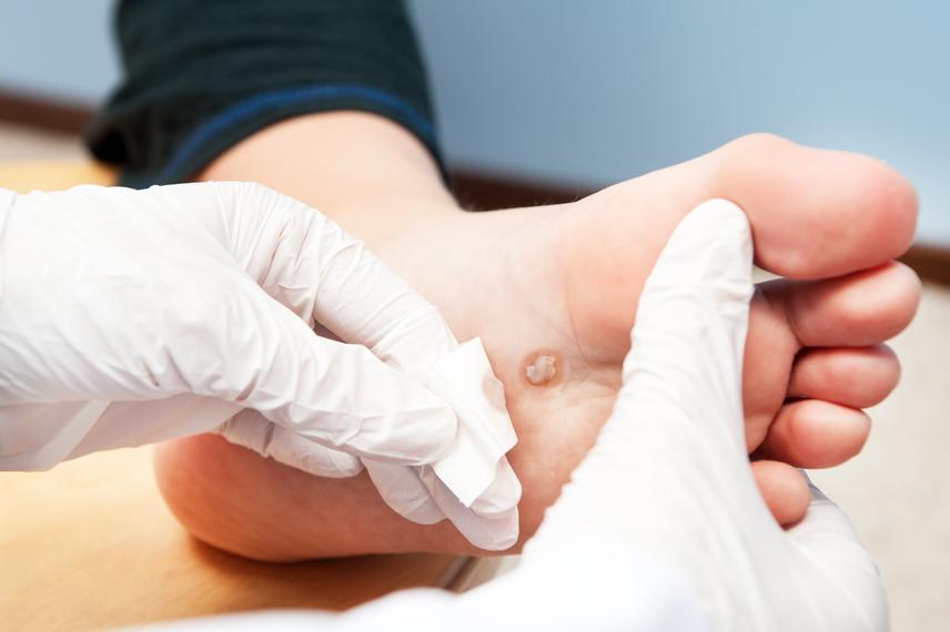 lábszemölcs alternatív kezelés