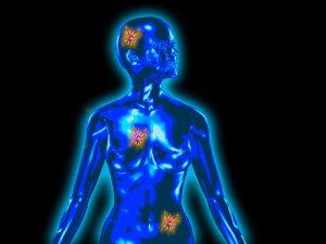 Öröklődő daganat teszt