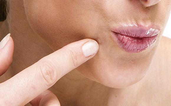 ha a szemölcsök viszketése baktériumok az arcon
