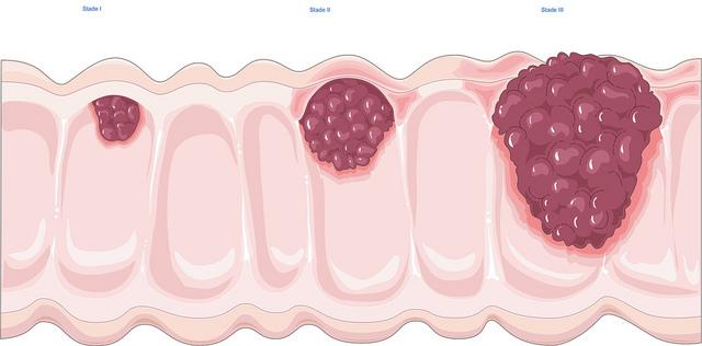 vastagbél rosszindulatú daganata