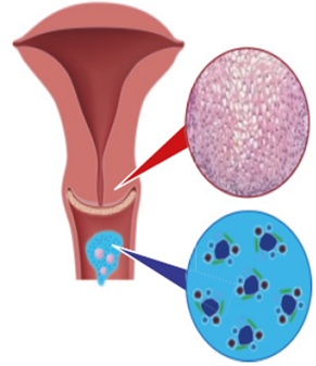 emberi papillomavírus fertőzés poszter