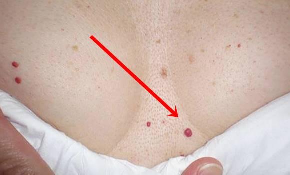 a rák gyengíti férgek kezelése csecsemőknél