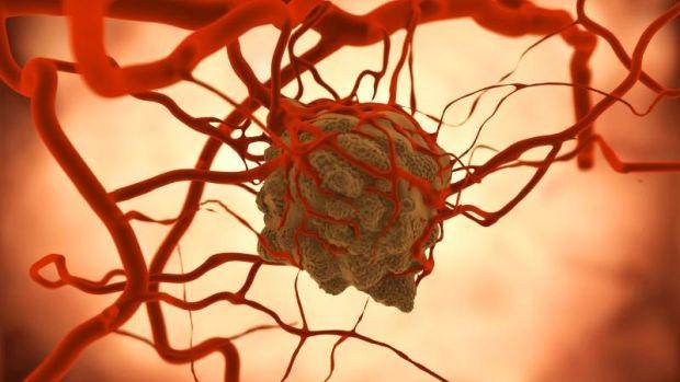 rák áttétek életében
