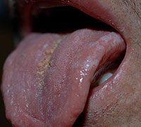 papilloma szemölcs a nyelven