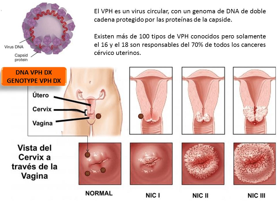 papilloma vírus nic 2