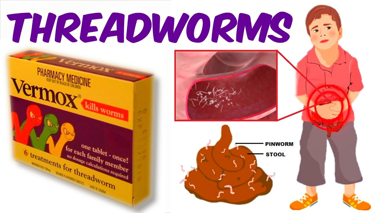 hogyan lehet megszabadulni a pinworm parazitától)