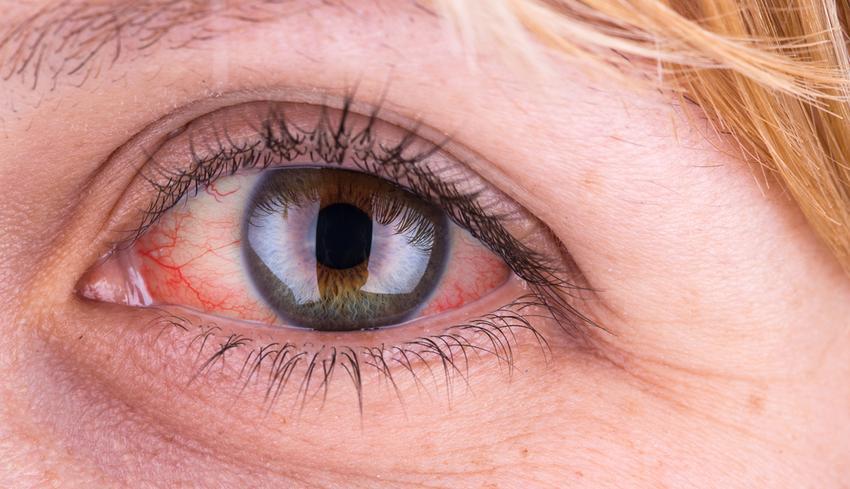 gyógyulás a szemölcs eltávolítása után méregtelenítési rend receptjei