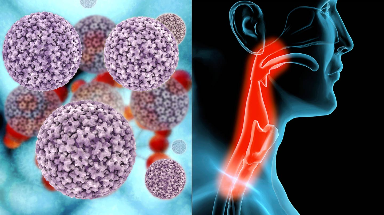 emberi papillomavírus fertőzés nyelőcsőrák