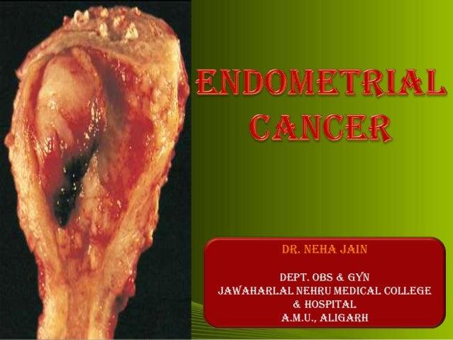endometrium rák williams slideshare férgek 11 év alatti gyermekeknél