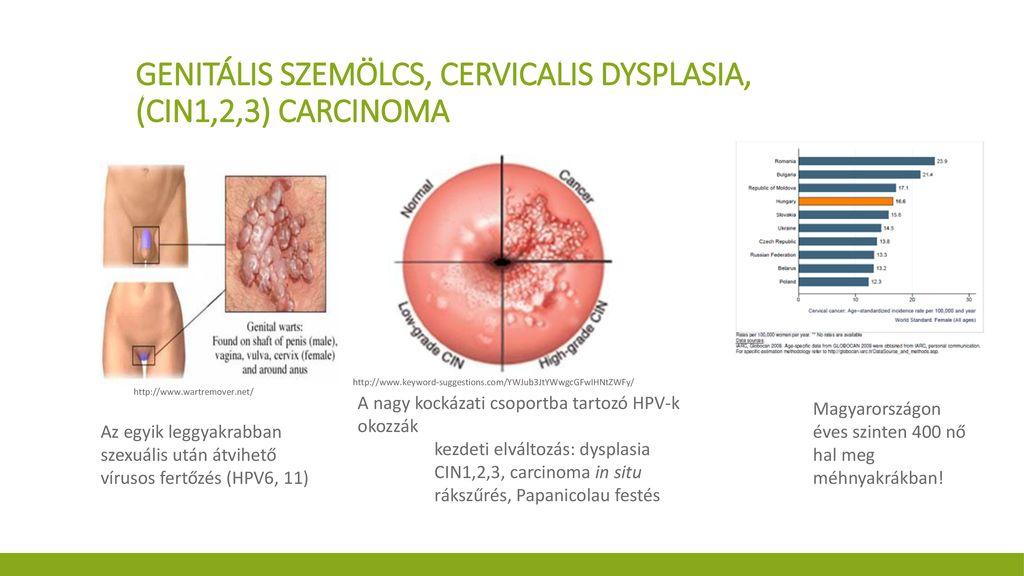 oxiuros élőhely labialis papilloma kezelés