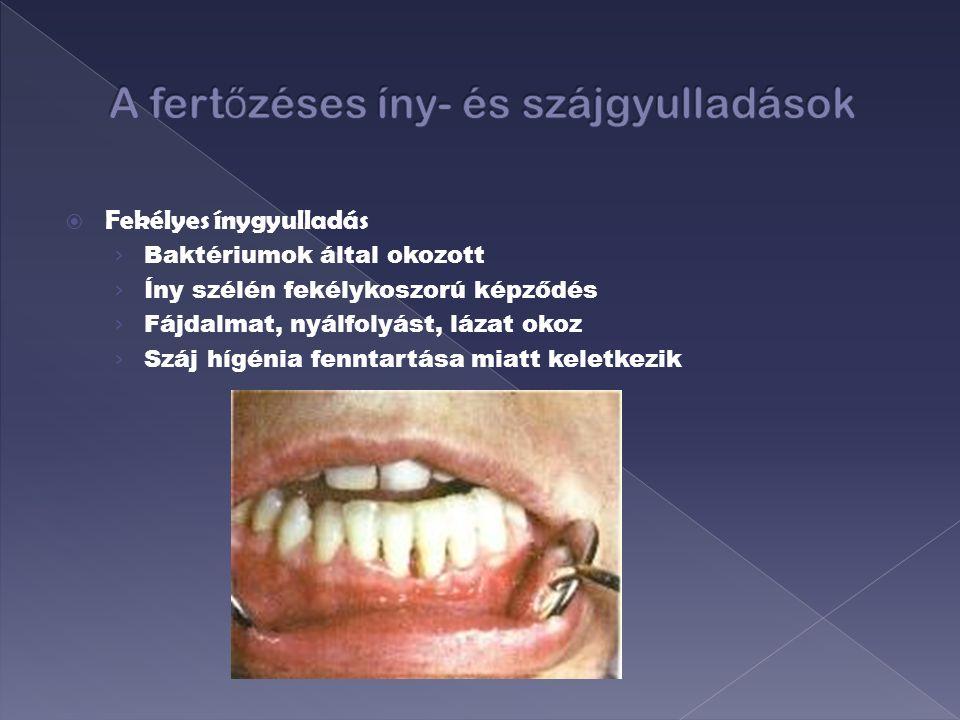 szájüregi rák ppt