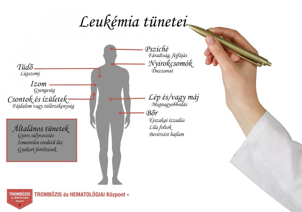 rák hodgkin tünetei)