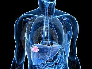 hasi rák daganatok