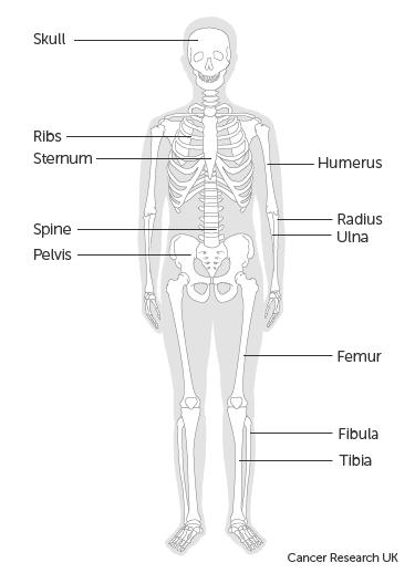 epithelioid szarkóma rák)