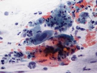 gyógyítsa meg a HPV rákot természetesen)