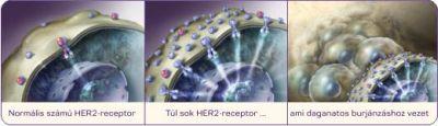 hormon pozitív rák