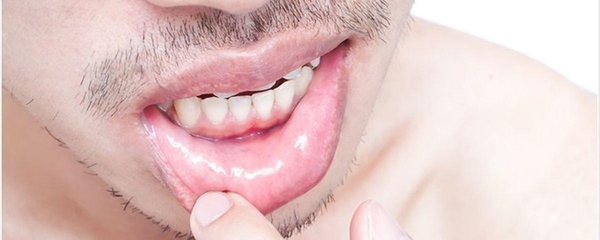 hpv herpes zoster vírus