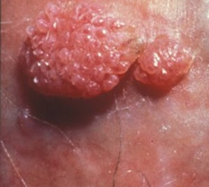 Hpv szemolcs viszket. Hpv szemolcs rak - Cancer limfatic ? limfom non-hodgkin