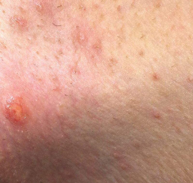 hpv vírus u muzu lecba a parazita felírása
